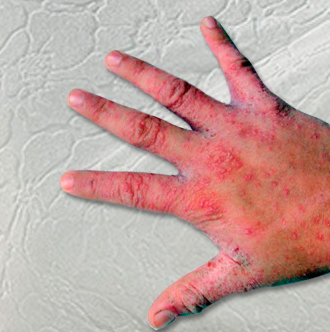 Scabies and human hand.